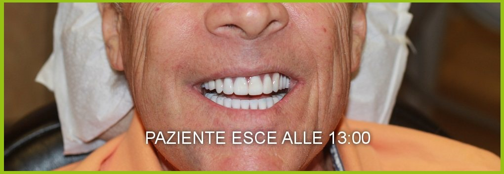 dentista napoli costi